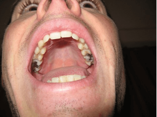 οδοντιατρικό αμάλγαμα