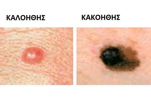 συνηθισμένοι τύποι καρκίνου - ελιες