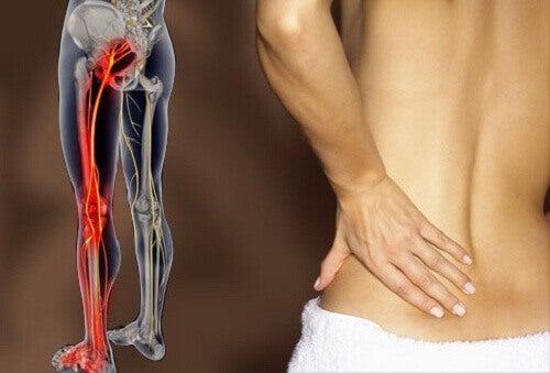 Αντιμετωπίστε την ισχιαλγία και τον πόνο στη μέση