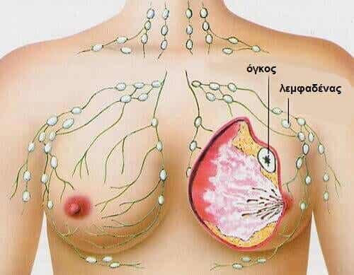 5 συνηθισμένοι τύποι καρκίνου στις γυναίκες
