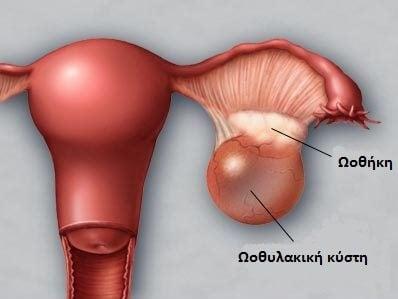 Ωοθήκη και κύστη στην ωοθήκη
