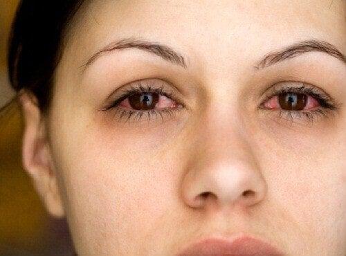 Πώς να μάθετε αν πάσχετε από έλλειψη ύπνου