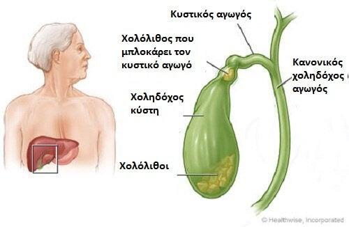 petres-cholidochos-kisti