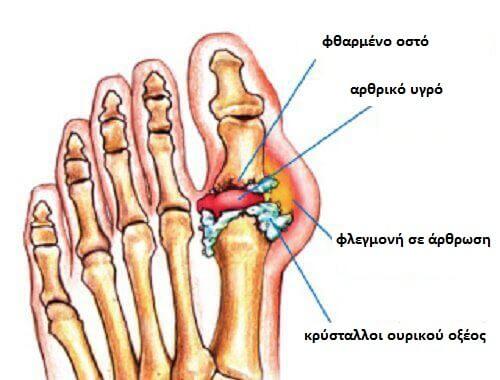 podagra-arthrosi