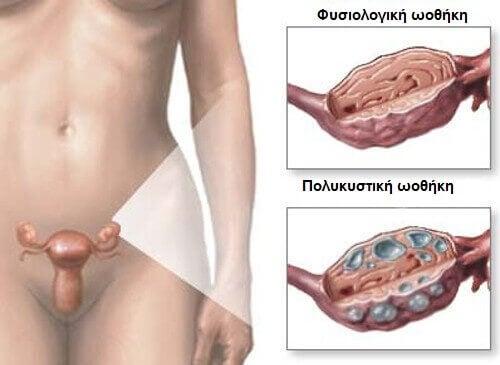 Θεραπείες για το σύνδρομο πολυκυστικών ωοθηκών