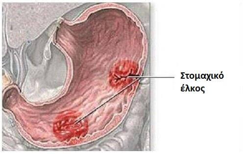 Ποια είναι τα συμπτώματα του στομαχικού έλκους;