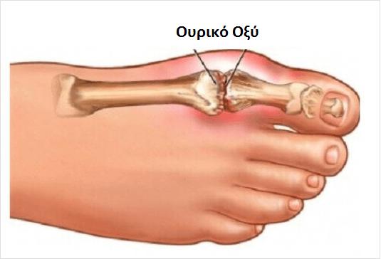 πόδι με ουρικο οξυ