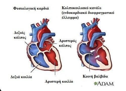 7 συμπτώματα του καρδιακού φυσήματος