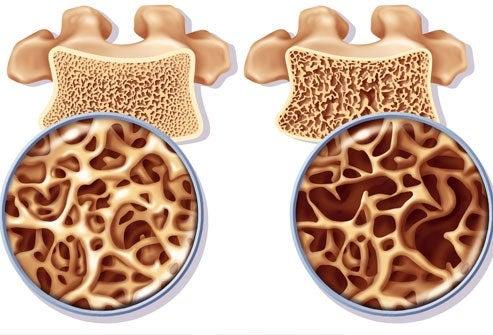 Οστεοπόρωση: πρόληψη και αντιμετώπιση