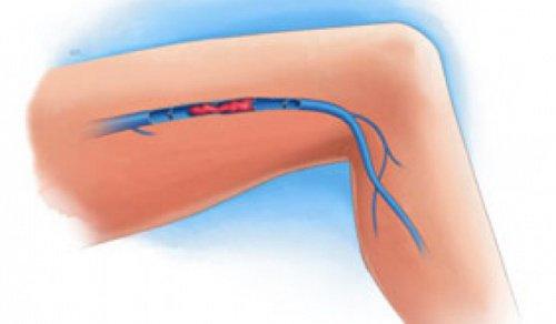 Θρόμβος αίματος στα πόδια: συμπτώματα
