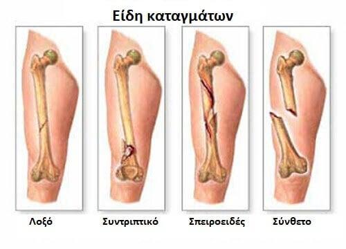 Συμπτώματα για τον πρωτογενή καρκίνο των οστών