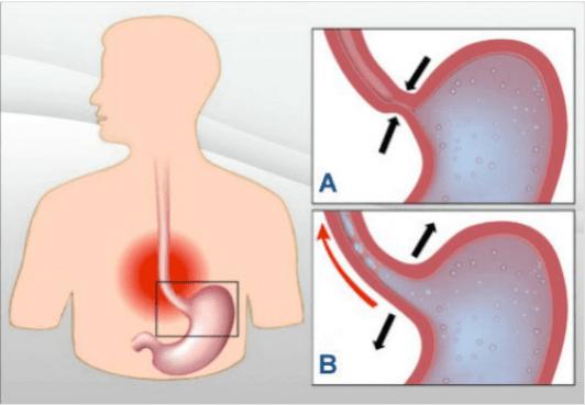 gastrooisofagiki palindromisi