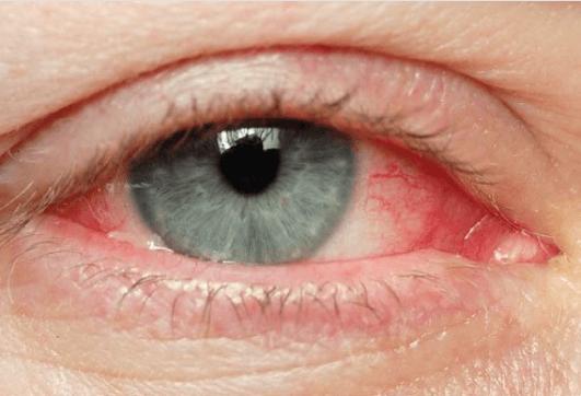 Φυσικές θεραπείες για ερεθισμένα μάτια