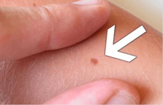Ελιά στο δέρμα