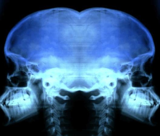 πρόληψη της οστεοπόρωσης, ακτινογραφία