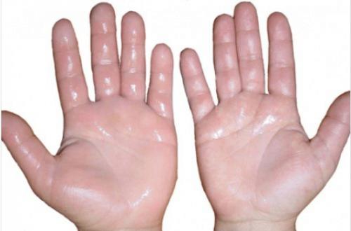 6 σπιτικές θεραπείες για πρησμένα χέρια