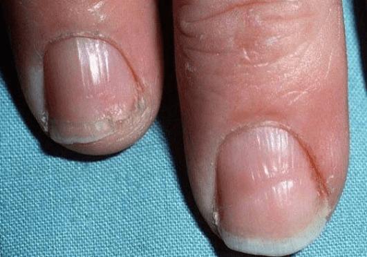 συμπτώματα του θυρεοειδούς - νύχια