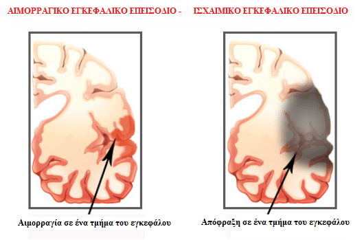 Συνέπειες της ανεπάρκειας ύπνου - Διαφορές εγκεφαλικών επεισοδίων