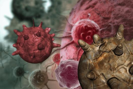 Συνέπειες της ανεπάρκειας ύπνου - Καρκινικά κύτταρα