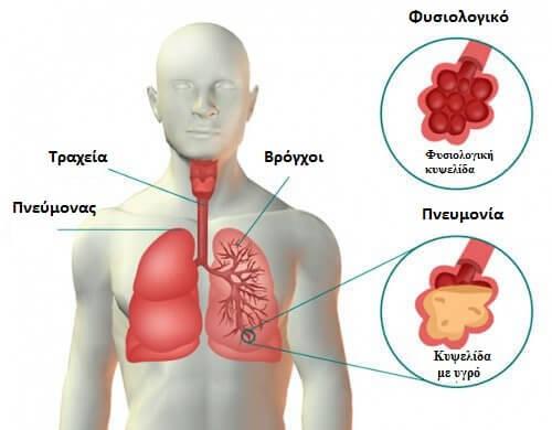 Συμπτώματα της πνευμονίας και σπιτικές θεραπείες