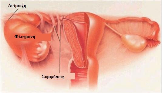 Φλεγμονώδης νόσος της πυέλου (ΦΝΠ): Συμπτώματα