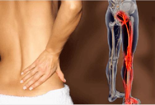 Ροφήματα και συμβουλές για τη θεραπεία της ισχιαλγίας