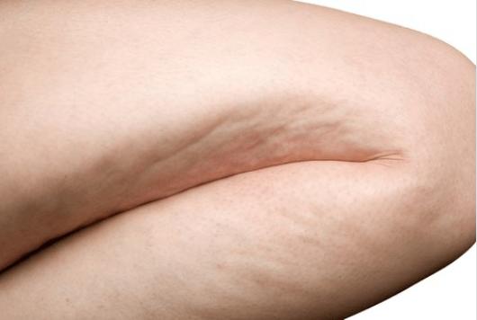 Ροφήματα και συμβουλές για να μειώσετε την κυτταρίτιδα