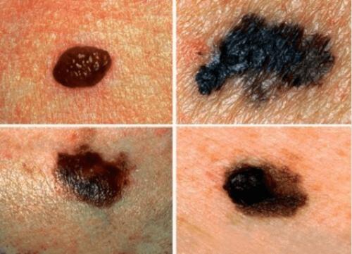 Μάθετε πώς να ανιχνεύετε τον πιθανό καρκίνο του δέρματος