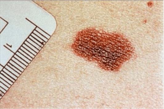 Καρκίνο του δέρματος - Ελιά στο δέρμα