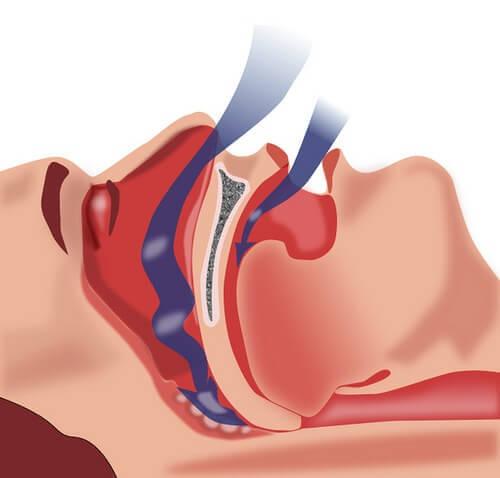 Φυσικές θεραπείες για την υπνική άπνοια