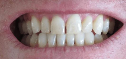 τρίξιμο των δοντιών και δόντια