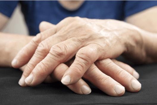 reumatoidis arthritida