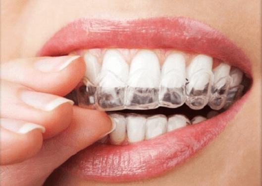 Τρίξιμο των δοντιών: 4 φυσικές θεραπείες