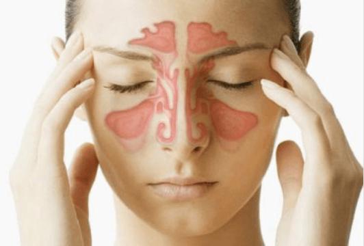 Αντιμετωπίστε την ιγμορίτιδα