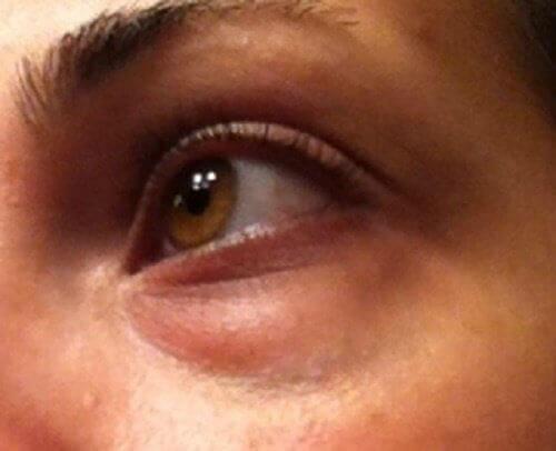 Κύκλοι κάτω από τα μάτια: φυσικές θεραπείες