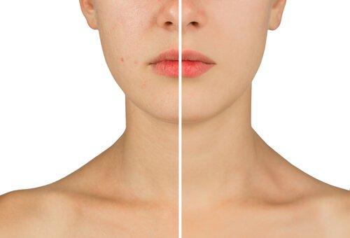 Φυσικές θεραπείες με οξυζενέ - Γυναίκα με και χωρίς ακμή