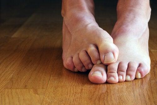 Φυσικές θεραπείες με οξυζενέ - Πόδια