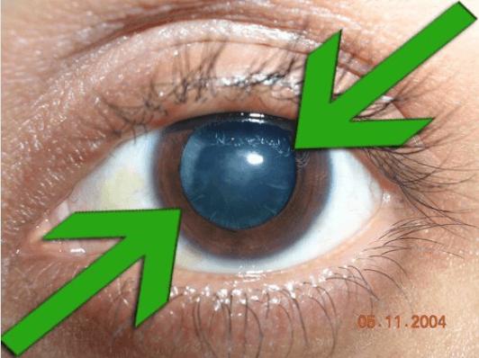όρασή σας είναι θολή - καταρρακτης
