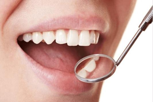 odontiki plaka