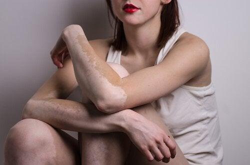 θεραπείες για τη λεύκη - βραχίονες