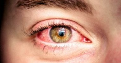 Συμβουλές για πιο υγιή μάτια