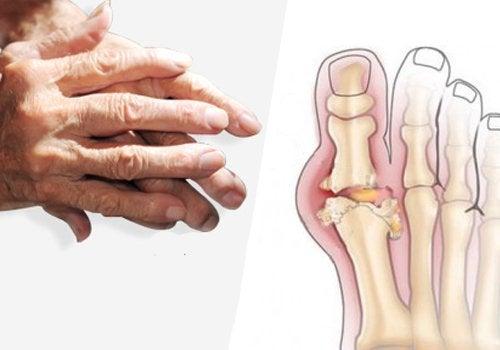 Οι θεραπευτικές ωφέλειες της βρώμης στην αρθρίτιδα