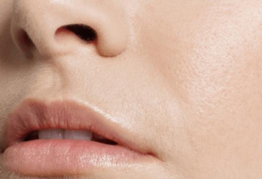 Το μηλόξυδο είναι εξαιρετικό - Γυναικεία χείλη