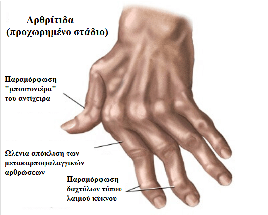 7 φυσικές θεραπείες για την αρθρίτιδα στα χέρια
