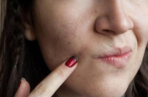 8 τροφές για άψογο δέρμα: Δείτε ποιες είναι και τι κάνουν για εσάς!