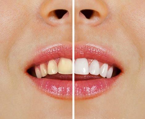 Τροφές που κιτρινίζουν τα δόντια. Ποιες είναι;