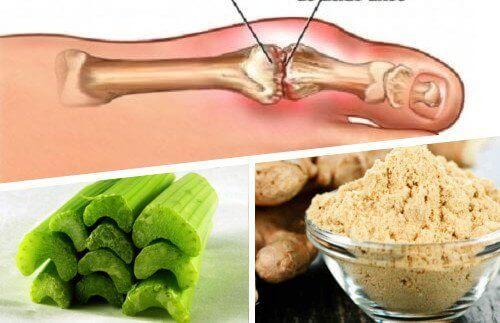 Εξαλείψτε τους κρυστάλλους ουρικού οξέος με τζίντζερ και σέλινο
