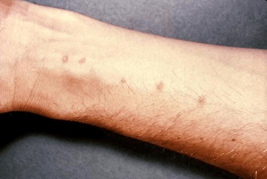 Σημάδια που στέλνει το δέρμα - Εξογκώματα στο χέρι