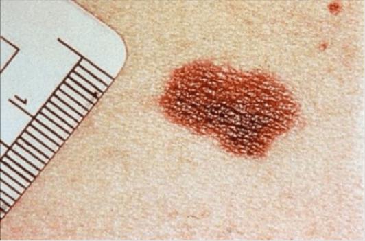 Σημάδια που στέλνει το δέρμα - Ελιά στο σώμα