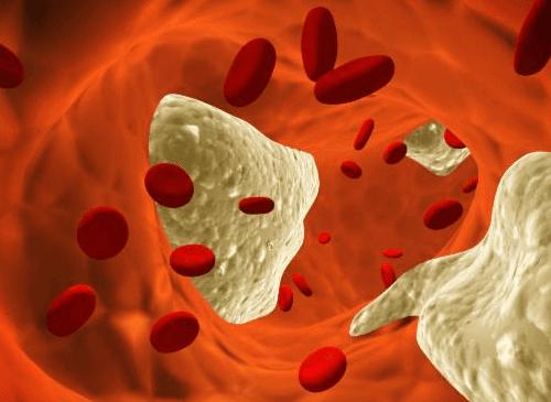 Τρώτε κάθε μέρα αβοκάντο - Χοληστερίνη στο αίμα